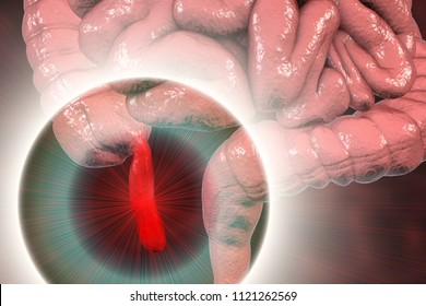 Acute appendicitis, 3D illustration showing inflammed appendix on the cecum