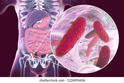 Acute appendicitis caused by bacteria Klebsiella pneumoniae, Gram-negative rod-shaped bacteria, one of the causative agents of appendicitis and other infections, 3D illustration