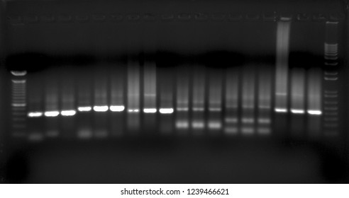 Agarose gel electrophoresis imaging with annotations.
