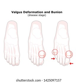 Age and valgus deformity of the thumb. Bunion. Stages of development of the disease. Silhouette of the foot bones.