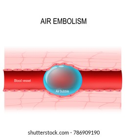 air embolism. gas embolism is a blood vessel blockage