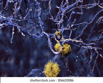 Alzheimer disease: neuron with amyloid plaques,