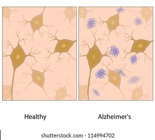 Alzheimer's disease brain tissue with amyloid plaques compared to normal