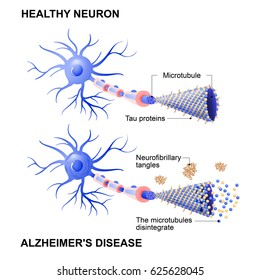 Alzheimer's disease. Mechanism of disease. Diagram shows two neurons: healthy cell and neuron with Alzheimer's disease. Tau hypothesis. Neurofibrillary tangles