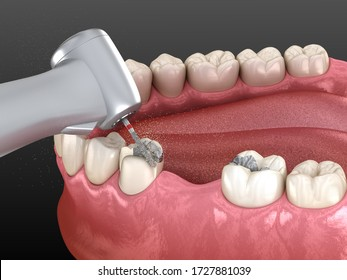Amalgam removing and preparation for ceramic crown placement. 3D illustration of dental concept
