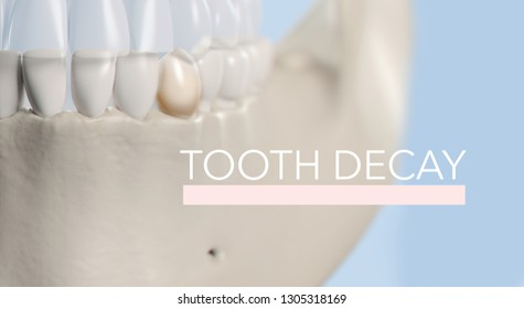 "Anatomical dental model of human teeth for dentistry, dental care, medical students. Title on image ""Tooth Decay"". 3d illustration"