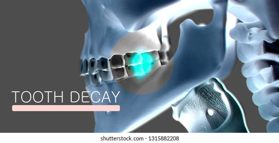 "Anatomical dental model of human teeth for dentistry, dental care, medical students. With title ""Tooth Decay"". 3d illustration."