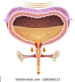 Anatomical and descriptive illustration of the problem bladder urinary incontinence.