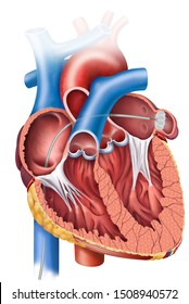 Anatomical illustration of the heart with sagittal view and the closure of the left atrial appendage.
