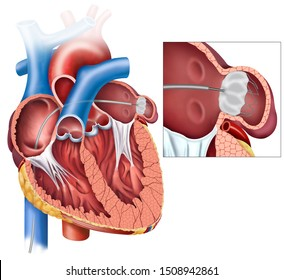 Anatomical illustration of the heart with sagittal view and the closure of the left atrial appendix with an alpliation of the appendix closure tetalle.