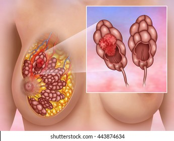 anatomical illustration of a woman breast lobe affected by a carcinoma.