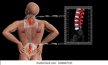Anatomical vision back pain. Spine anatomy. 3D illustration.