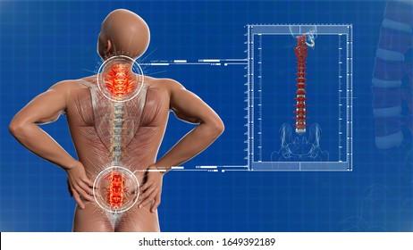 解剖学的視覚の腰痛。脊椎の構造。3Dイラスト。