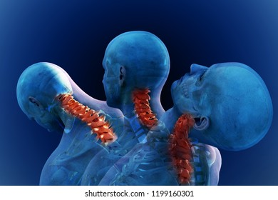 Anatomical vision pain in the human neck. 3D illustration.