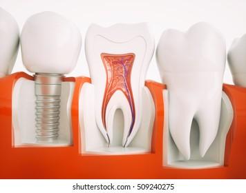 Anatomy of healthy teeth and dental implant in jaw bone.3D Rendering