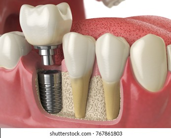 Anatomy of healthy teeth and tooth dental implant in human dentura. 3d illustration.