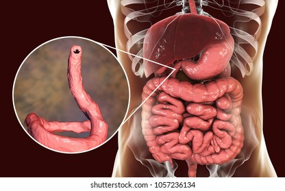 Ancylostomiasis. Human intestine and close-up view of a parasitic hookworm Ancylosoma duodenale, 3D illustration. It infects humans, dogs and cats, its head has several tooth-like structures