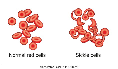 Anemia is a decrease in the number of red blood cells in the blood. The causes may be blood loss, decreased red blood cell production or inheritable sickle cell disease.