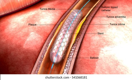 Angioplasty 3d illustration