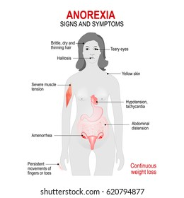 Anorexia nervosa is an eating disorder. low weight. Signs and symptoms. woman silhouette with highlighted internal organs.