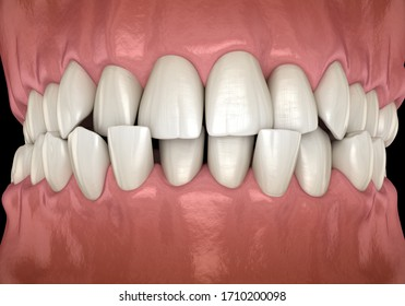 Anterior crossbite dental occlusion ( Malocclusion of teeth ). Medically accurate tooth 3D illustration