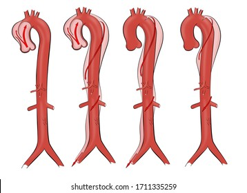 Aortic dissection. Illustration of four types of dissected thoracic aorta aneurism.