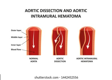 Aortic dissection and aortic intramural hematoma.