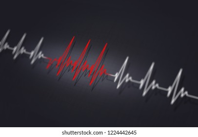 arrythmia medical illustration of heart irregular pulsating
