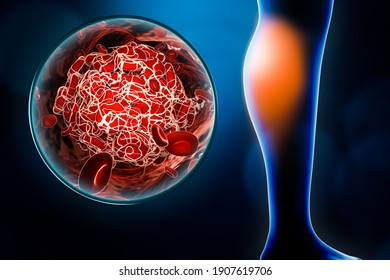 Arterial embolism or embolus located in the calf with blood clot or thrombus image 3D rendering illustration. Medicine, medical condition, health, disease or vascular pathology concepts.