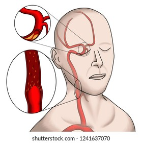 arterial stenosis and occlusion are the causes of ischemic stroke.