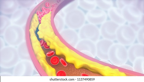 Artery blocked with bad cholesterol. clogged arteries, coronary artery plaque. 3d illustration