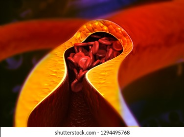 Artery blocked with bad cholesterol. clogged arteries  coronary artery plaque. 3d render
