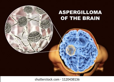 Aspergilloma of the brain and close-up view of fungi Aspergillus, 3D illustration. An intracranial lesion produced by fungi Aspergillus in immunocompromised patients