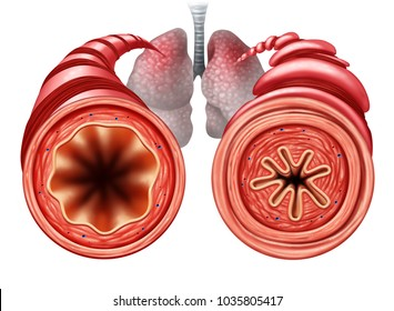 Asthma diagram as a healthy and unhealthy bronchial tube with a constricted breathing  problem caused by respiratory muscle tightening with 3D illustration elements.