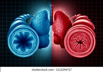 Asthma health diagnosis as a diagram with a healthy and unhealthy bronchial tube with a constricted breathing  problem caused by respiratory muscle tightening with 3D illustration elements.