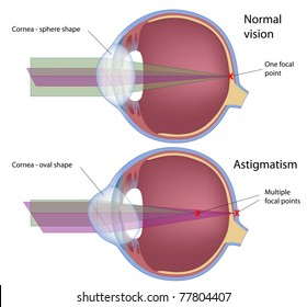 Astigmatism, a common eye defect