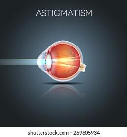 Astigmatism. Eyesight problem, blurred vision. Anatomy of the eye, cross section.