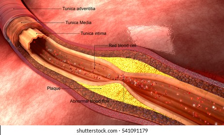 Atherosclerosis 3d illustration