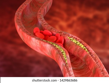 Atherosclerosis is an accumulation of cholesterol plaques in the walls of the arteries, which causes obstruction of blood flow. 3D rendering