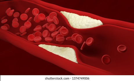 Atherosclerosis. Plaque builds up inside an artery. Blood cells. 3d illustration.