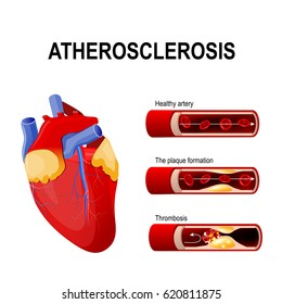Atherosclerosis stages: Healthy artery, the plaque formation and thrombosis. Anatomy of a heart attack. plaque in a coronary artery.