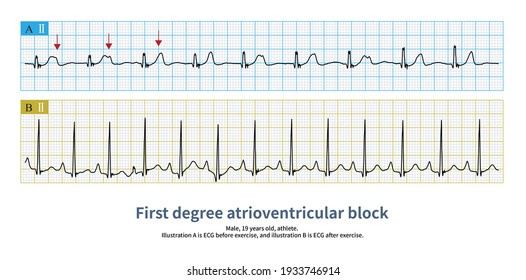 Athletes belong to individuals with high vagal tension. They may have first degree atrioventricular block and disappear after exercise.