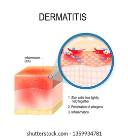 Atopic dermatitis (atopic eczema). Cross-section of human skin with dermatitis. Close-up of skin cells, and penetration of allergens. illustration for medical, biological, and educational use