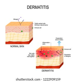 Atopic dermatitis (atopic eczema). Healthy skin and cross-section of human skin with dermatitis. showing changes and differences. illustration for medical and educational use