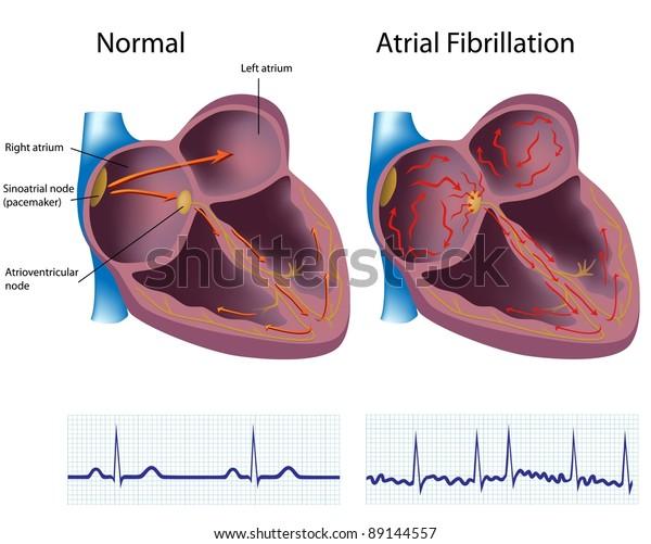 心房颤动,一种常见的心脏病