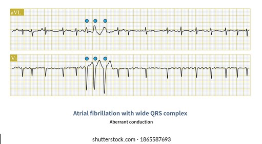 In atrial fibrillation, a wide QRS complex is common, and it is necessary to distinguish between supraventricular sources and ventricular sources.