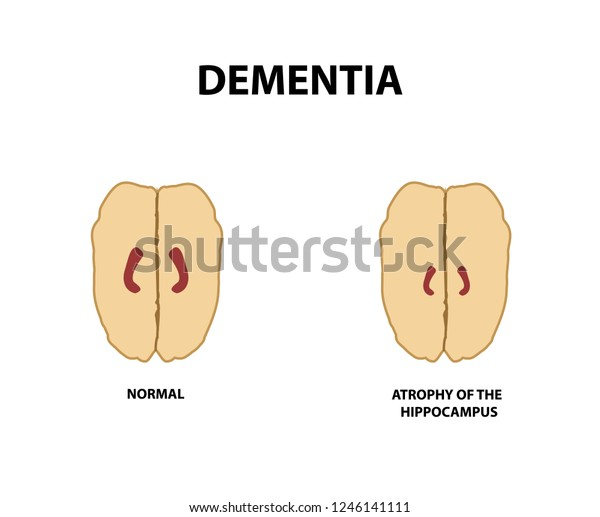 damage in alzheimer's disease