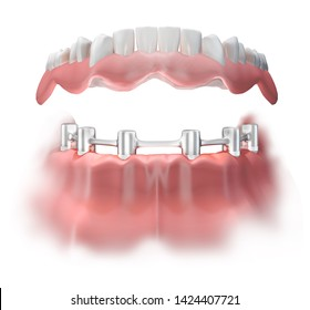 Attachment of the false denture to the lower jaw with the help of a titanium bridge fixed on 6 implants. 3D illustration.