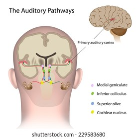 The auditory pathways labeled.