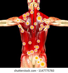 Back view of a man and his trigger points. Anatomy muscles. 3d rendering. Myofascial trigger points, are described as hyperirritable spots in the fascia surrounding skeletal muscle.